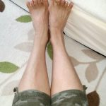 LVA後3年の足首